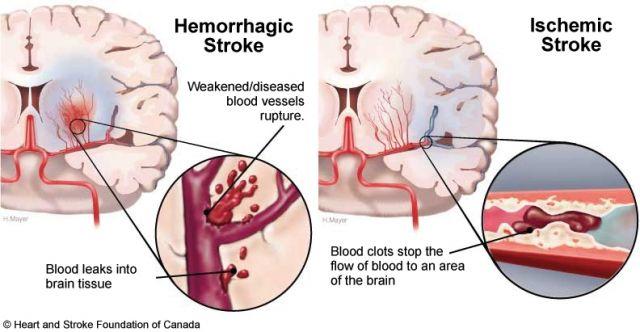 Penawar Penyakit Stroke